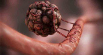 Jon Heras - Progression of Angiogenesis